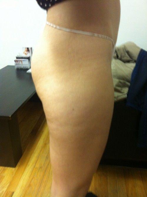 Emmy Rossum Leaked Nude P...